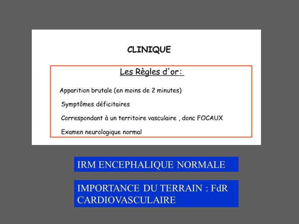 IRM ENCEPHALIQUE NORMALE IMPORTANCE DU TERRAIN : FdR CARDIOVASCULAIRE