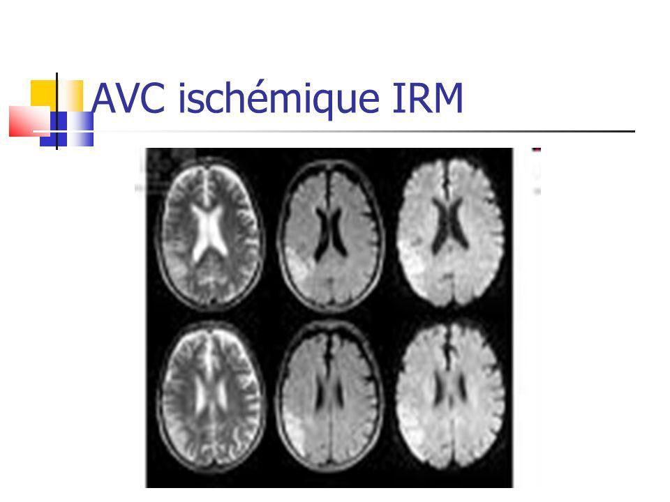 AVC ischémique IRM