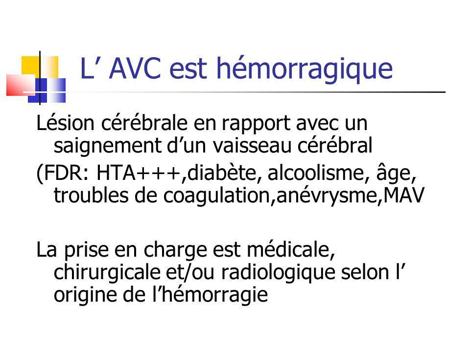 L AVC est hémorragique Lésion cérébrale en rapport avec un saignement dun vaisseau cérébral (FDR: HTA+++,diabète, alcoolisme, âge, troubles de coagula