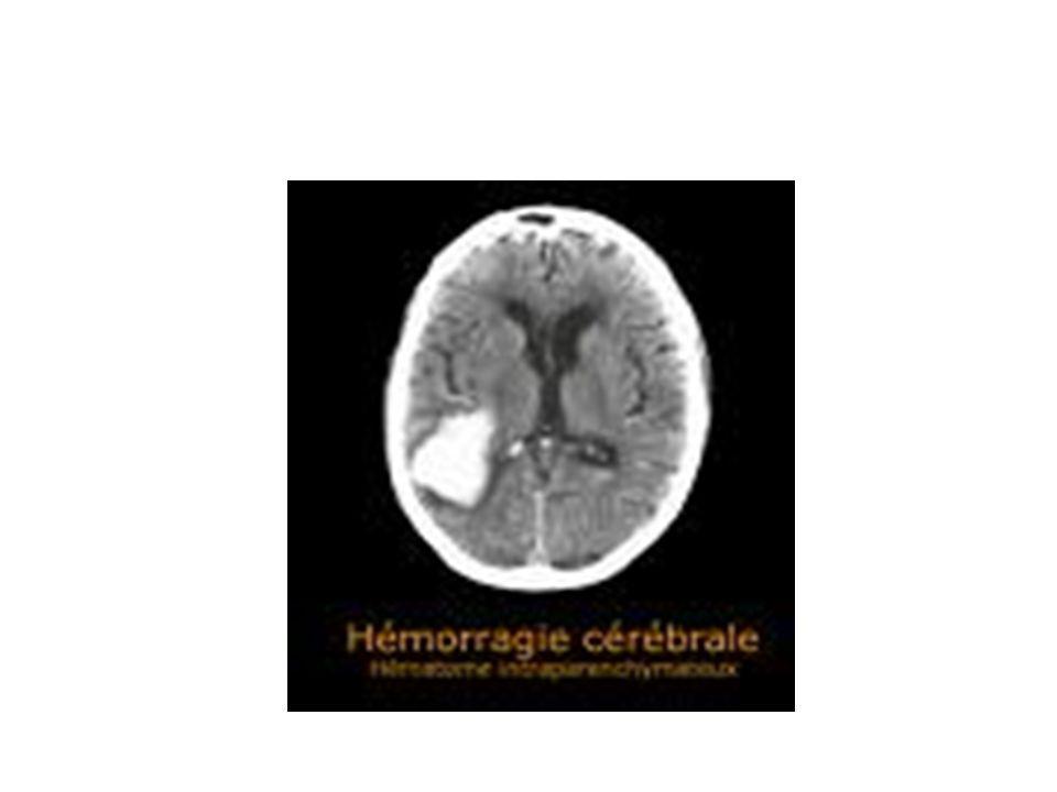 Traitement de l AVC hémorragique MESURES GENERALES - Hospitalisation en soins intensifs( neurochirurgie si besoin) - Surveillance neurologique +++ - Assurer la liberté des voies aériennes, intubation plus fréquente - Scope ECG, SpO2, TA, Et CO2 - Respecter lHTA+++ - Contrôle de la glycémie - Nursing