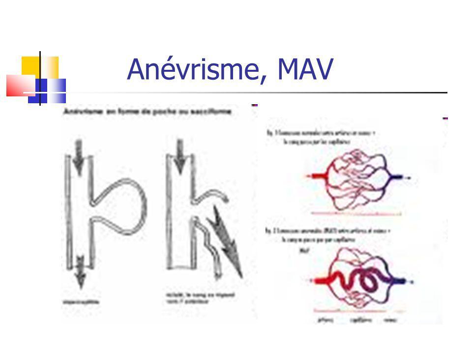 Anévrisme, MAV