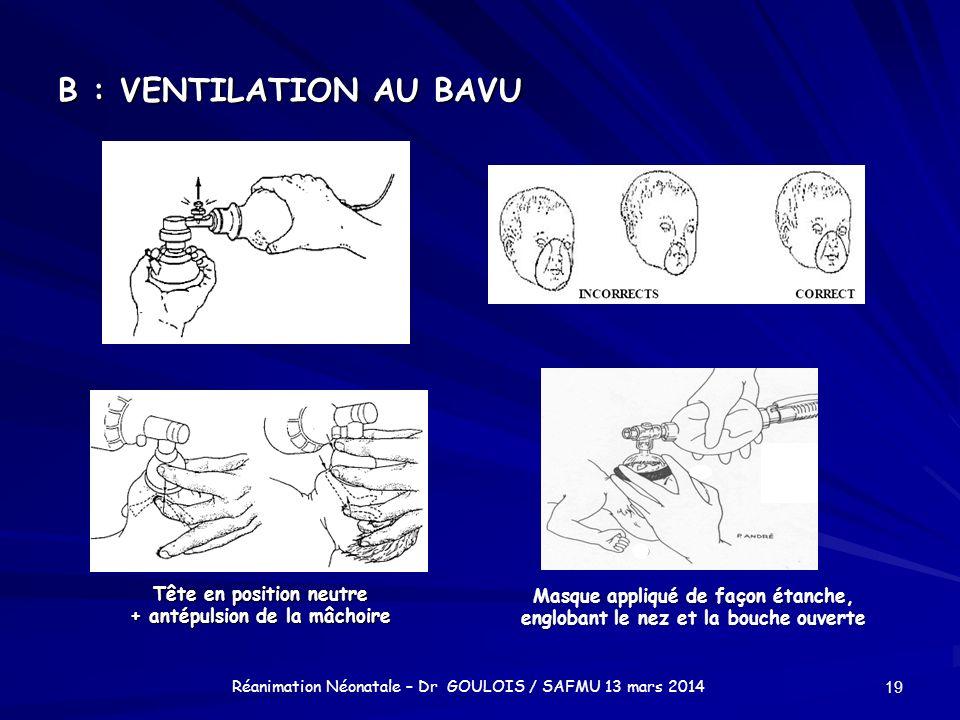 B : VENTILATION AU BAVU 19 Réanimation Néonatale – Dr GOULOIS / SAFMU 13 mars 2014 Tête en position neutre + antépulsion de la mâchoire Masque appliqu
