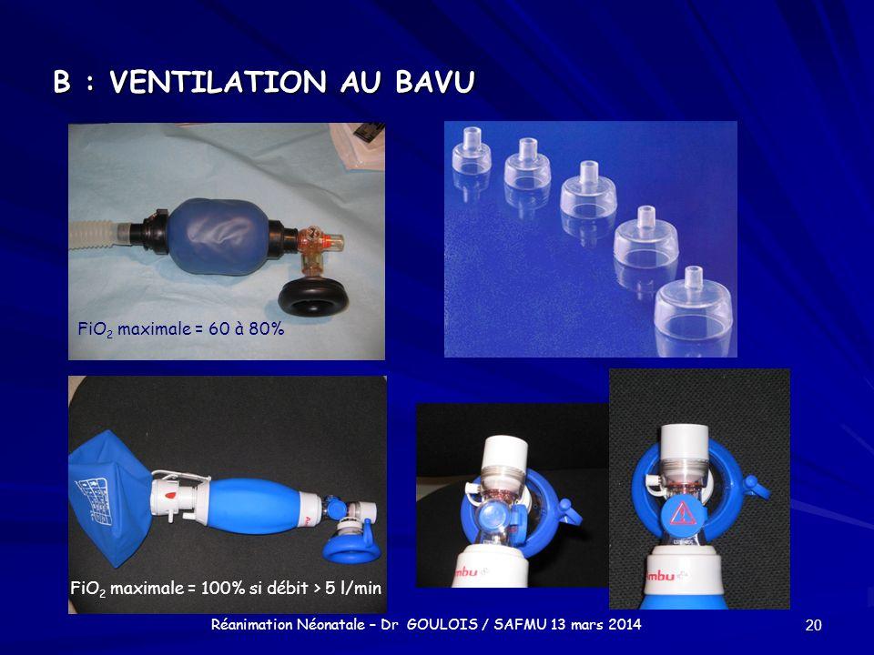 B : VENTILATION AU BAVU 20 Réanimation Néonatale – Dr GOULOIS / SAFMU 13 mars 2014 FiO 2 maximale = 60 à 80% FiO 2 maximale = 100% si débit > 5 l/min