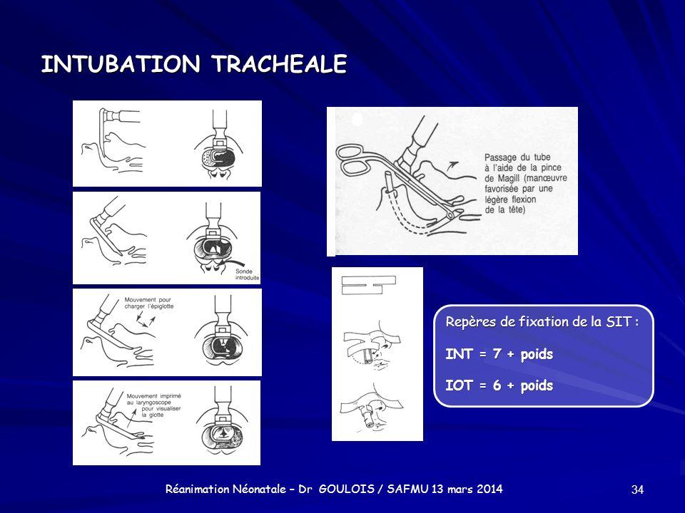 INTUBATION TRACHEALE 34 Réanimation Néonatale – Dr GOULOIS / SAFMU 13 mars 2014 Repères de fixation de la SIT : INT = 7 + poids IOT = 6 + poids