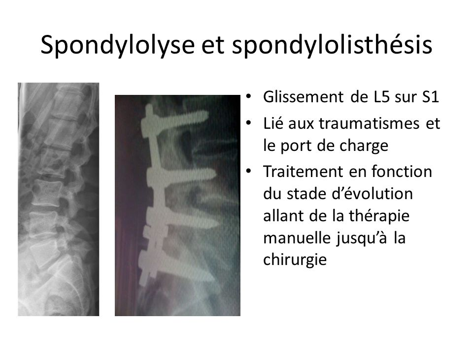 Spondylolyse et spondylolisthésis Glissement de L5 sur S1 Lié aux traumatismes et le port de charge Traitement en fonction du stade dévolution allant