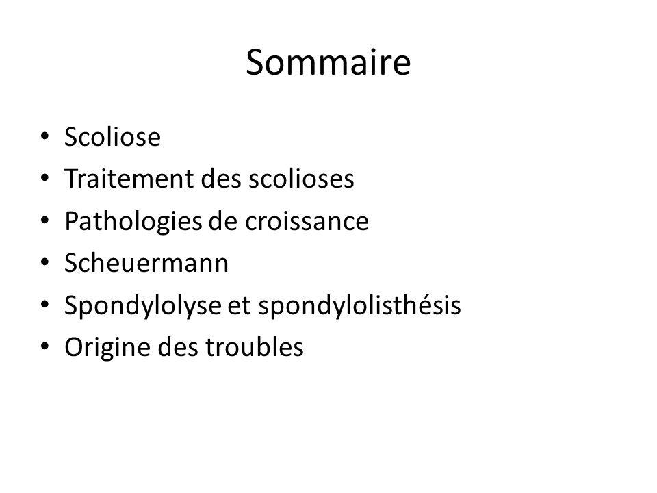 Sommaire Scoliose Traitement des scolioses Pathologies de croissance Scheuermann Spondylolyse et spondylolisthésis Origine des troubles