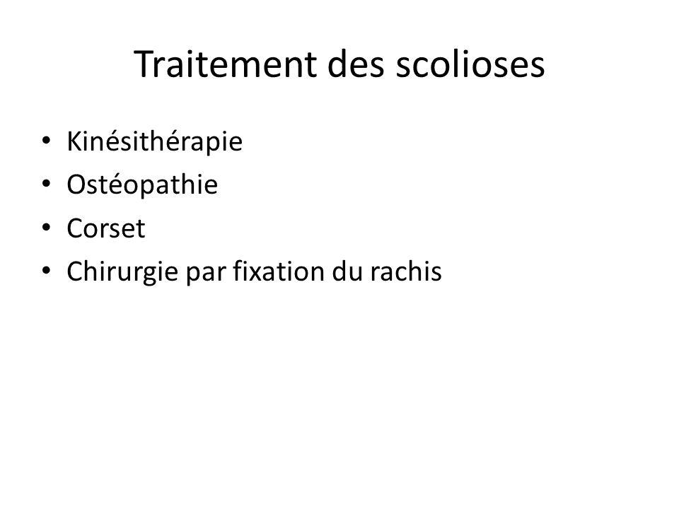 Traitement des scolioses Kinésithérapie Ostéopathie Corset Chirurgie par fixation du rachis