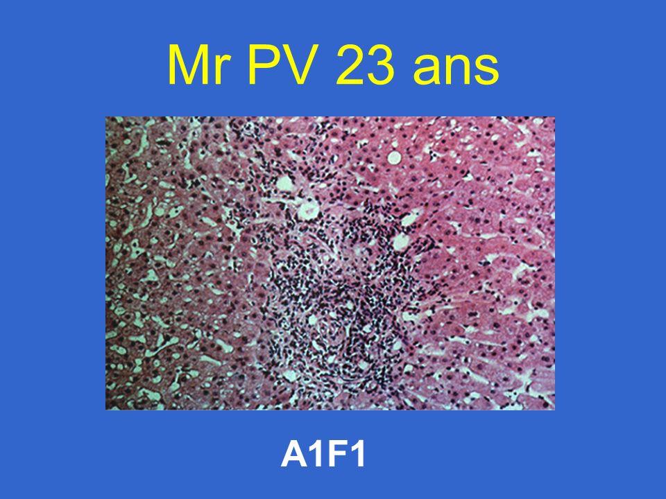 Mr PV 23 ans A1F1