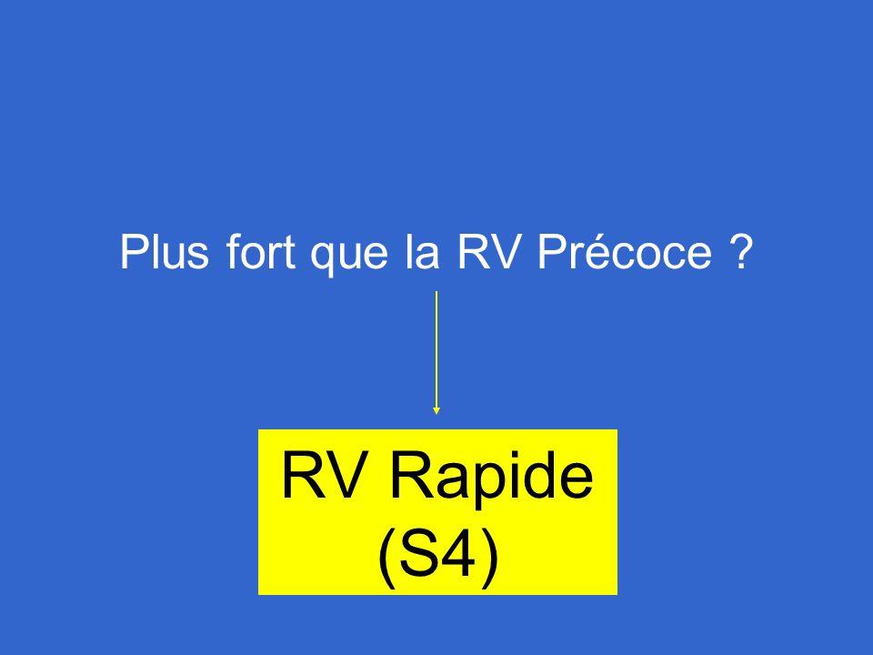 RV Rapide (S4)