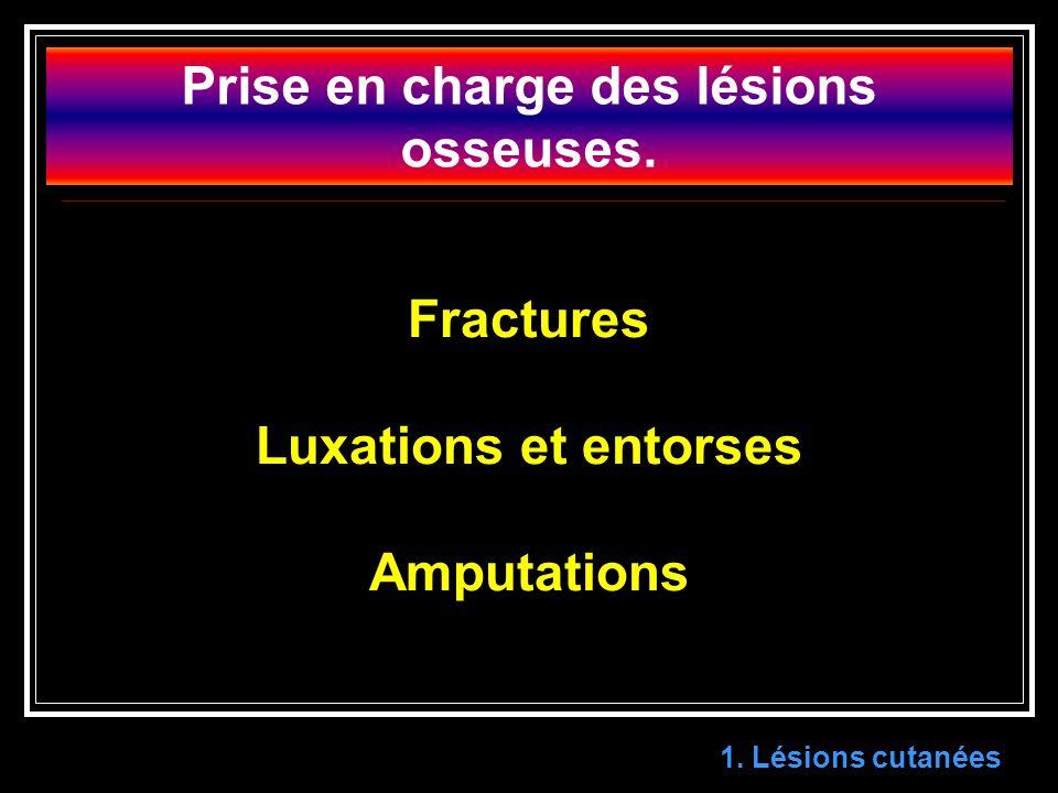 Prise en charge des lésions osseuses.Fractures Luxations et entorses Amputations 1.