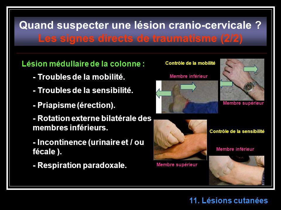 11.Lésions cutanées Quand suspecter une lésion cranio-cervicale .