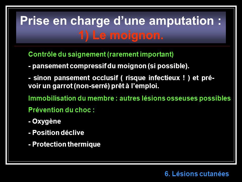 Prise en charge dune amputation : 1) Le moignon.6.
