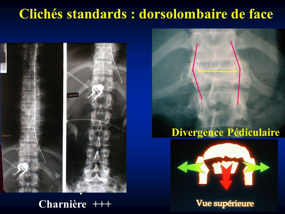 Clichés standards : dorsolombaire de face Charnière +++ Divergence Pédiculaire