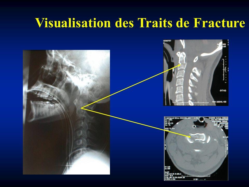 Visualisation des Traits de Fracture