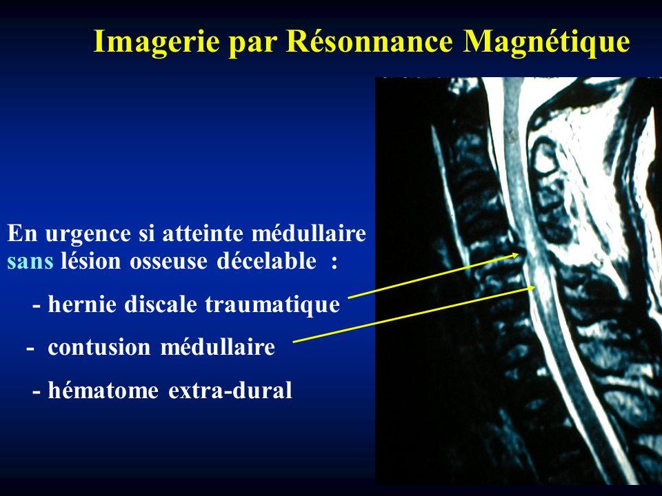 En urgence si atteinte médullaire sans lésion osseuse décelable : - hernie discale traumatique - contusion médullaire - hématome extra-dural Imagerie