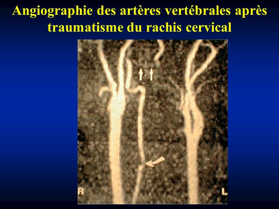 Angiographie des artères vertébrales après traumatisme du rachis cervical