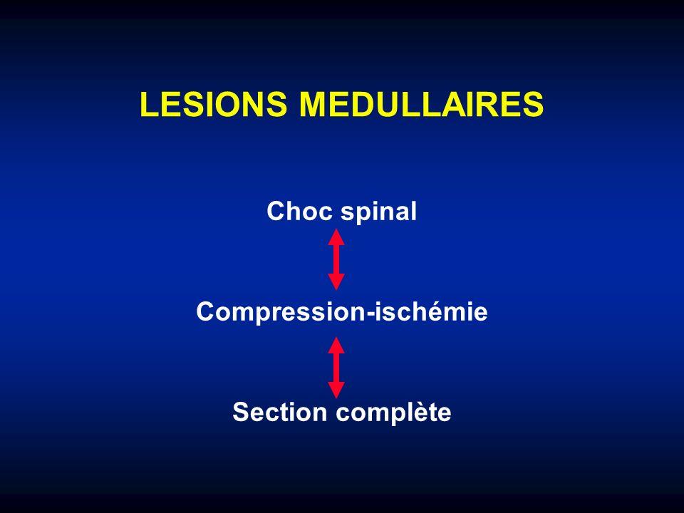 LESIONS MEDULLAIRES Choc spinal Compression-ischémie Section complète