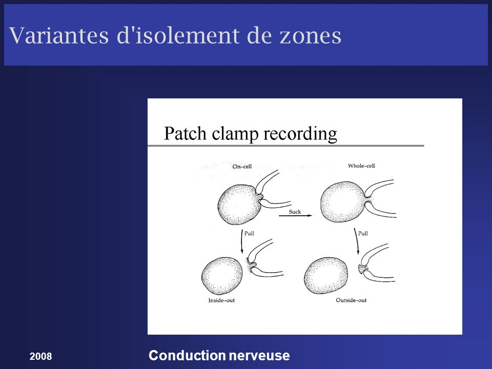 2008 Conduction nerveuse Variantes d'isolement de zones