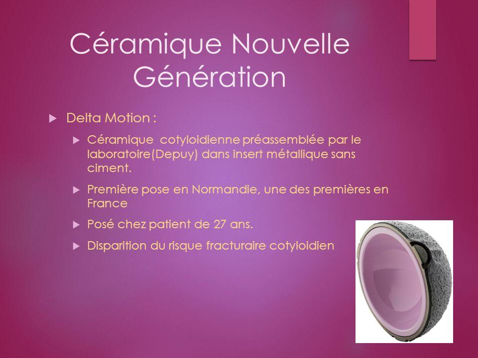 Céramique Nouvelle Génération Delta Motion : Céramique cotyloidienne préassemblée par le laboratoire(Depuy) dans insert métallique sans ciment. Premiè