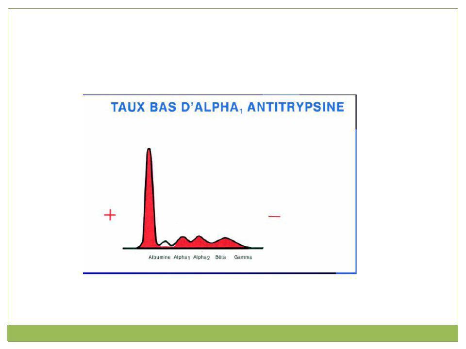 α 2 -globulines L haptoglobine, l α 2 -macroglobuline et la céruléoplasmine font partie des α 2 -globulines (environ 10 % d un protéinogramme).haptoglobineα 2 -macroglobulinecéruléoplasmine Cette fraction est diminuée lors d une cirrhose hépatique.
