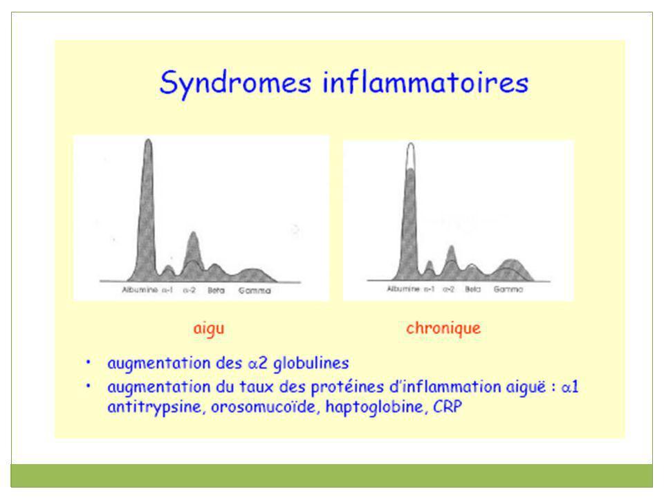 γ-globulines Représentant environ 17 %, la fraction γ comprend les immunoglobulines G, M, A, D et E.immunoglobulines Les immunoglobulines (Ig)ou Ac sont des glycoprotéines présentes dans le sérum et les liquides interstitiel des mammifères, Synthétisés par les lymphocytes B activées (Plasmocytes).
