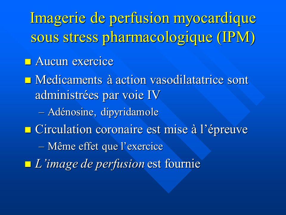Imagerie de perfusion myocardique sous stress pharmacologique (IPM) Aucun exercice Aucun exercice Medicaments à action vasodilatatrice sont administré