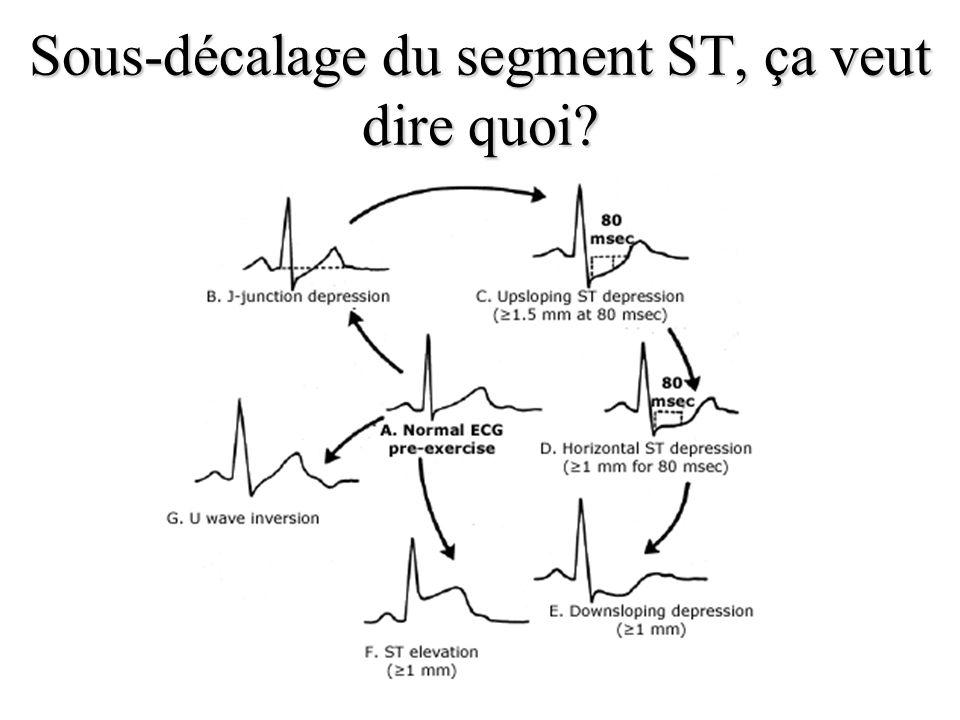 Sous-décalage du segment ST, ça veut dire quoi?