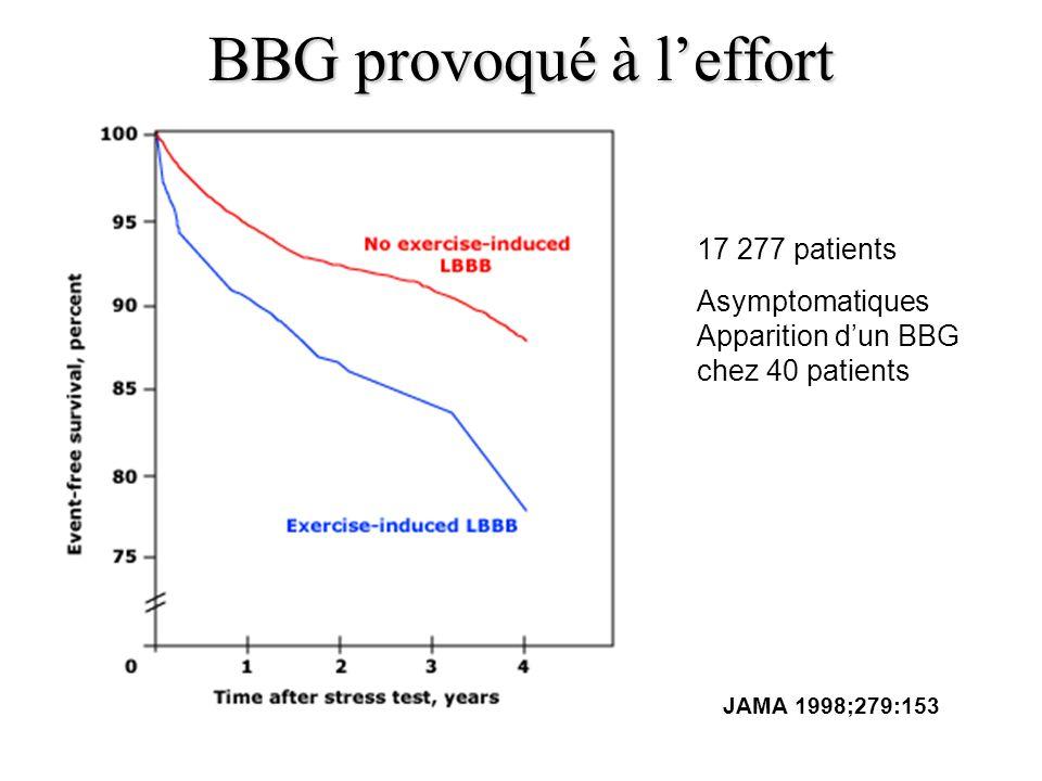 BBG provoqué à leffort JAMA 1998;279:153 17 277 patients Asymptomatiques Apparition dun BBG chez 40 patients
