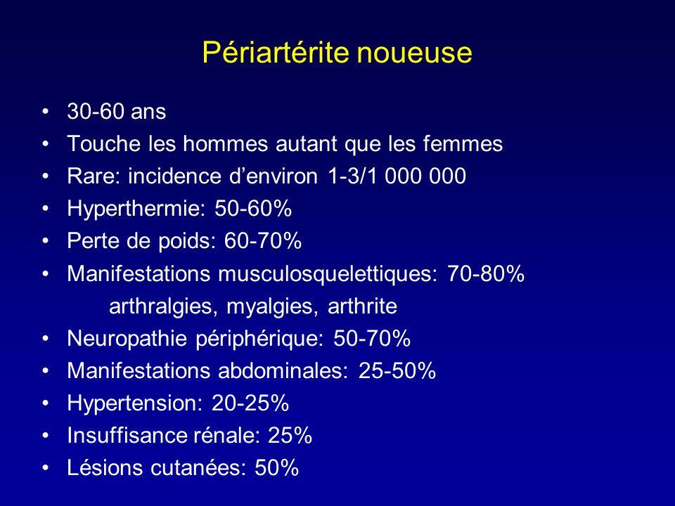 Périartérite noueuse 30-60 ans Touche les hommes autant que les femmes Rare: incidence denviron 1-3/1 000 000 Hyperthermie: 50-60% Perte de poids: 60-70% Manifestations musculosquelettiques: 70-80% arthralgies, myalgies, arthrite Neuropathie périphérique: 50-70% Manifestations abdominales: 25-50% Hypertension: 20-25% Insuffisance rénale: 25% Lésions cutanées: 50%