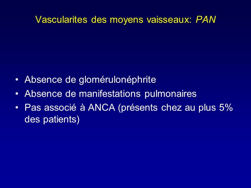 Vascularites des moyens vaisseaux: PAN Absence de glomérulonéphrite Absence de manifestations pulmonaires Pas associé à ANCA (présents chez au plus 5% des patients)