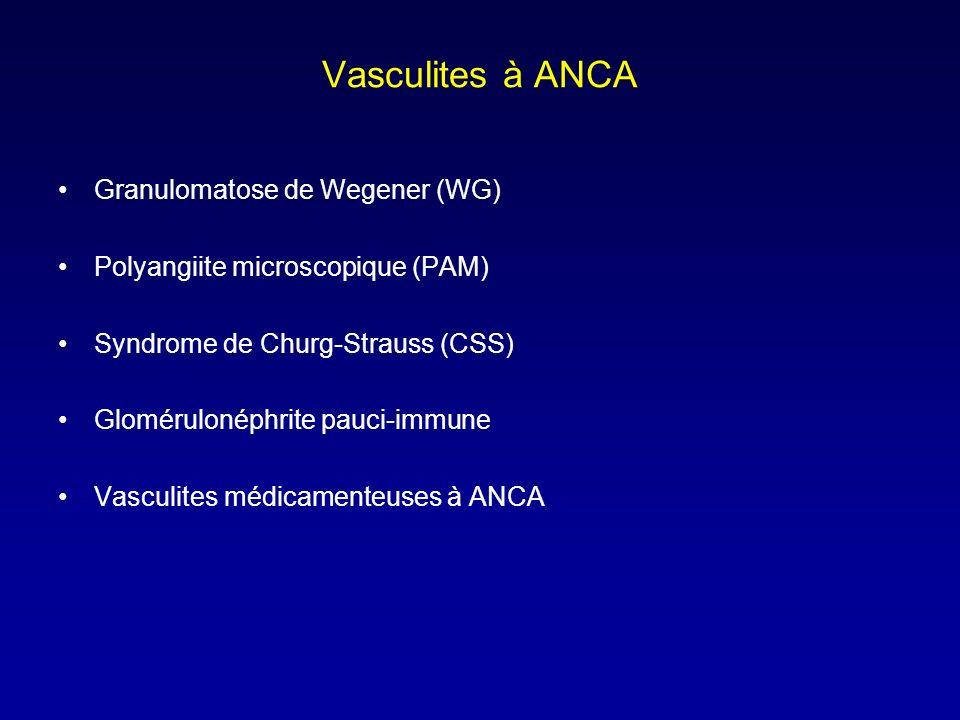 Vasculites à ANCA Granulomatose de Wegener (WG) Polyangiite microscopique (PAM) Syndrome de Churg-Strauss (CSS) Glomérulonéphrite pauci-immune Vasculites médicamenteuses à ANCA