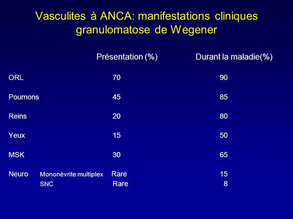Vasculites à ANCA: manifestations cliniques granulomatose de Wegener Présentation (%) Durant la maladie(%) ORL 70 90 Poumons 45 85 Reins 20 80 Yeux 15 50 MSK 30 65 Neuro Mononévrite multiplex Rare 15 SNC Rare 8