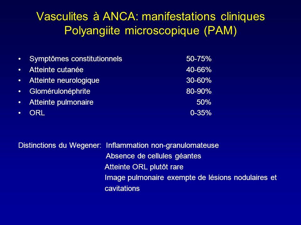Vasculites à ANCA: manifestations cliniques Polyangiite microscopique (PAM) Symptômes constitutionnels50-75% Atteinte cutanée40-66% Atteinte neurologique30-60% Glomérulonéphrite80-90% Atteinte pulmonaire 50% ORL 0-35% Distinctions du Wegener: Inflammation non-granulomateuse Absence de cellules géantes Atteinte ORL plutôt rare Image pulmonaire exempte de lésions nodulaires et cavitations