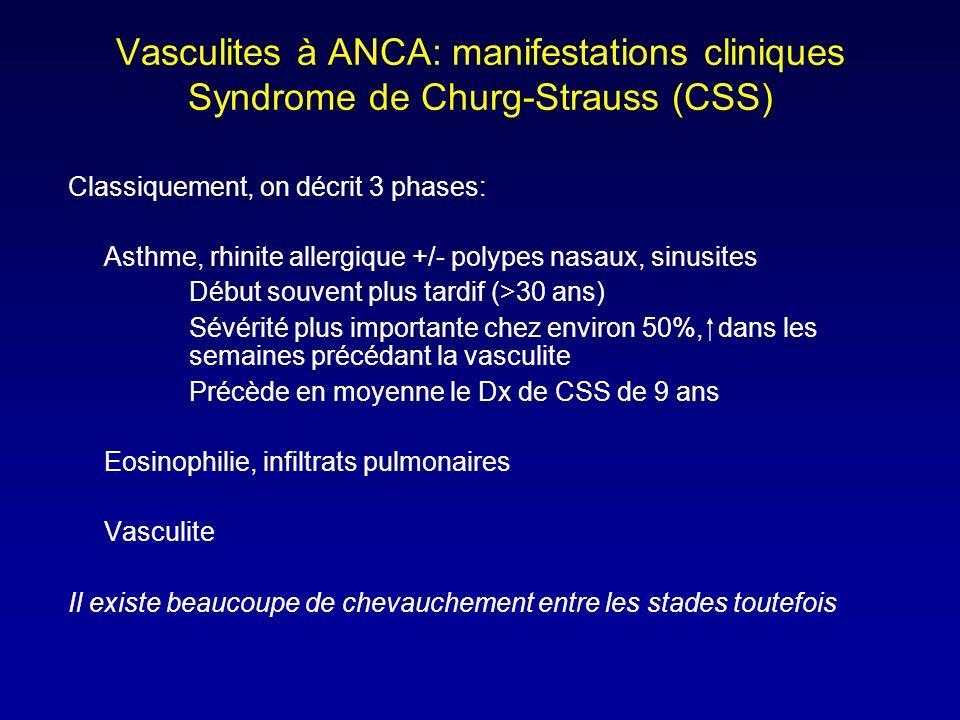 Vasculites à ANCA: manifestations cliniques Syndrome de Churg-Strauss (CSS) Classiquement, on décrit 3 phases: Asthme, rhinite allergique +/- polypes nasaux, sinusites Début souvent plus tardif (>30 ans) Sévérité plus importante chez environ 50%, dans les semaines précédant la vasculite Précède en moyenne le Dx de CSS de 9 ans Eosinophilie, infiltrats pulmonaires Vasculite Il existe beaucoupe de chevauchement entre les stades toutefois