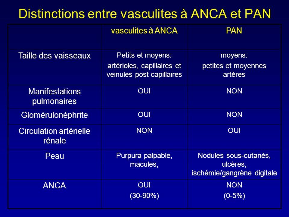 Distinctions entre vasculites à ANCA et PAN vasculites à ANCAPAN Taille des vaisseaux Petits et moyens: artérioles, capillaires et veinules post capillaires moyens: petites et moyennes artères Manifestations pulmonaires OUINON Glomérulonéphrite OUINON Circulation artérielle rénale NONOUI Peau Purpura palpable, macules, Nodules sous-cutanés, ulcères, ischémie/gangrène digitale ANCA OUI (30-90%) NON (0-5%)