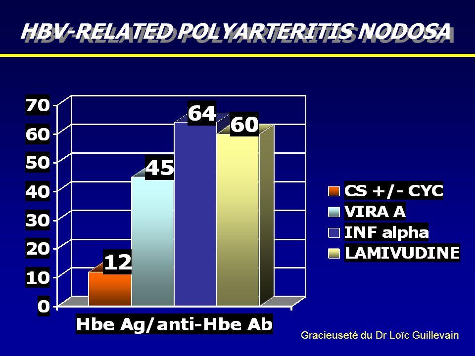 HBV-RELATED POLYARTERITIS NODOSA Gracieuseté du Dr Loïc Guillevain