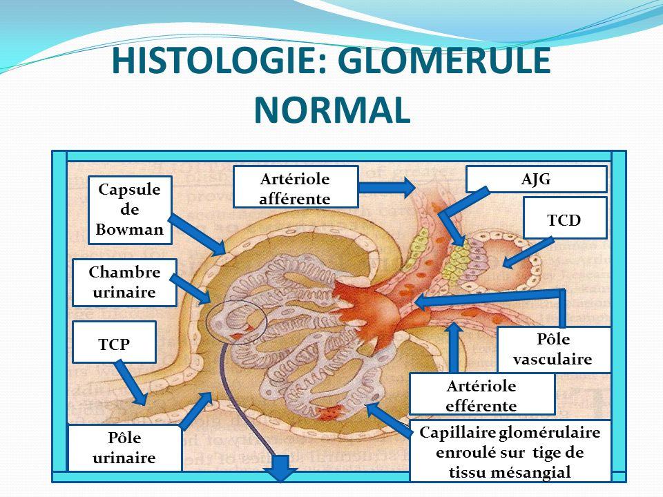 HISTOLOGIE: GLOMERULE NORMAL CC Capillaires glomérulaires Ce Cellules endothé liales Membrane basale glomérulaire PoPPdocyteC C Podocyte PoPPdocyteC CP Pédicelles