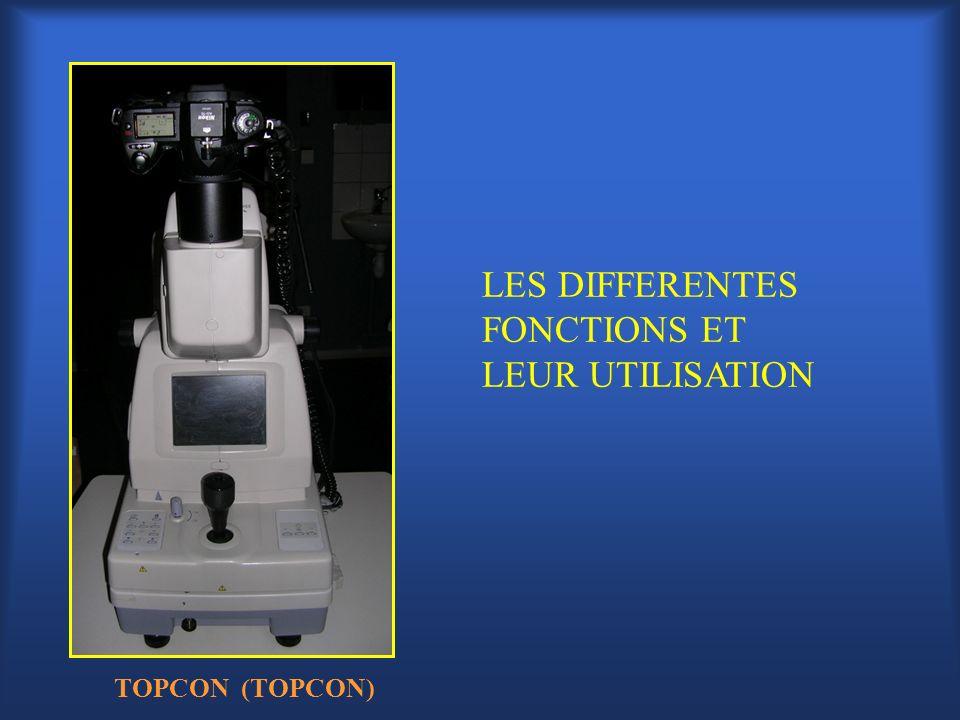 LES DIFFERENTES FONCTIONS ET LEUR UTILISATION TOPCON (TOPCON)