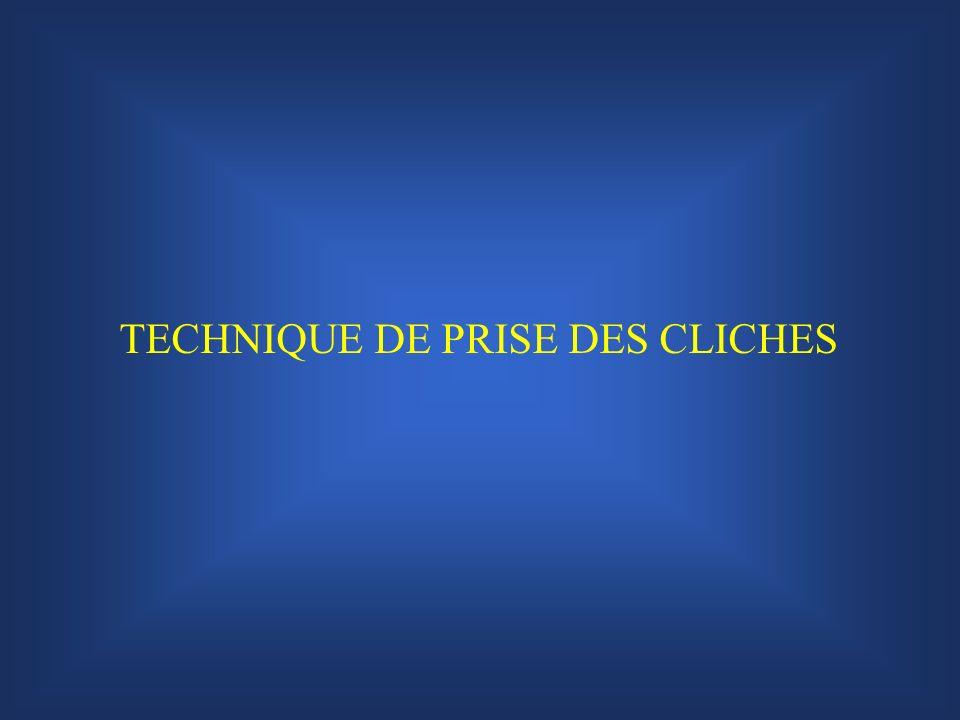 TECHNIQUE DE PRISE DES CLICHES
