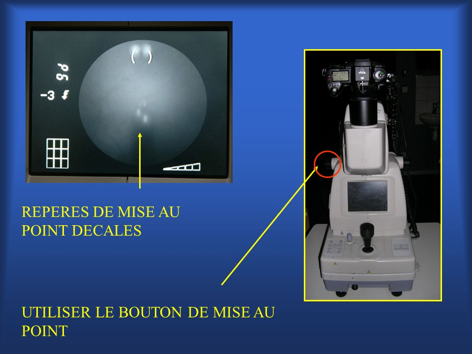 UTILISER LE BOUTON DE MISE AU POINT REPERES DE MISE AU POINT DECALES