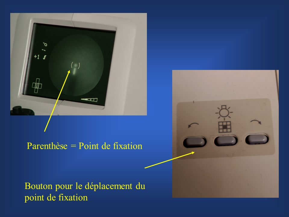 Bouton pour le déplacement du point de fixation Parenthèse = Point de fixation