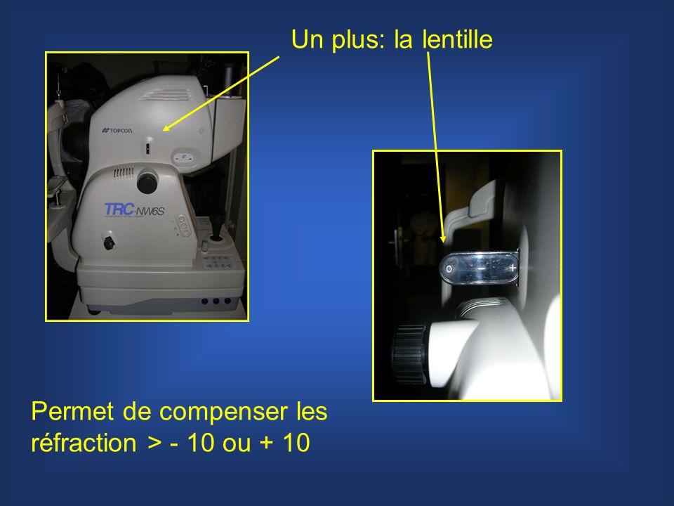 Un plus: la lentille Permet de compenser les réfraction > - 10 ou + 10