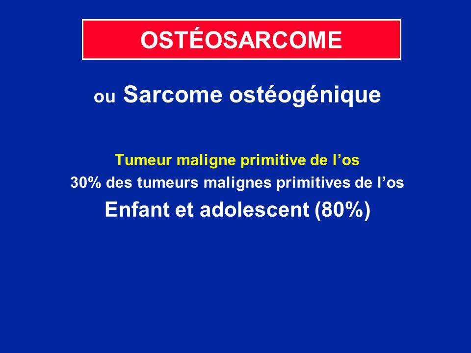 OSTÉOSARCOME ou Sarcome ostéogénique Tumeur maligne primitive de los 30% des tumeurs malignes primitives de los Enfant et adolescent (80%)