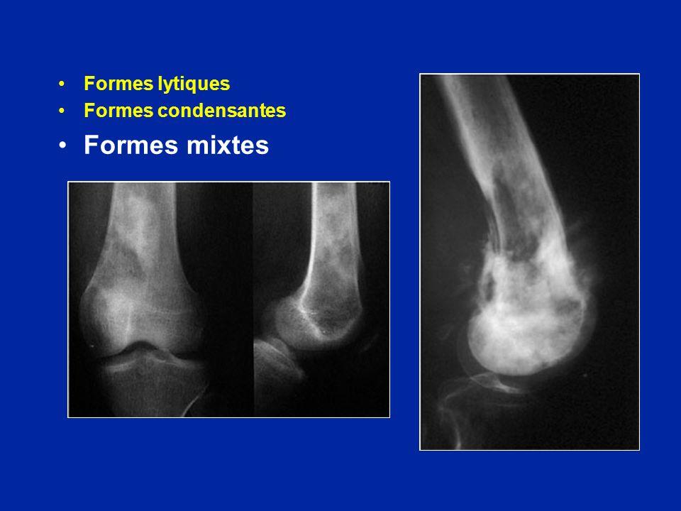 Formes lytiques Formes condensantes Formes mixtes