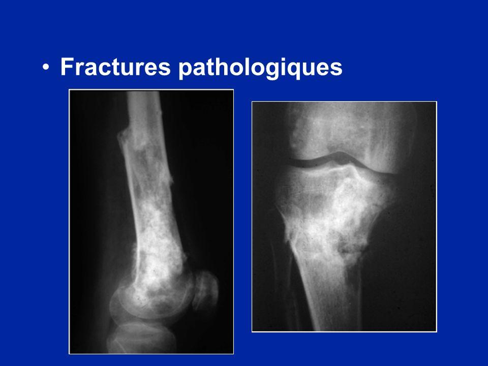 Fractures pathologiques