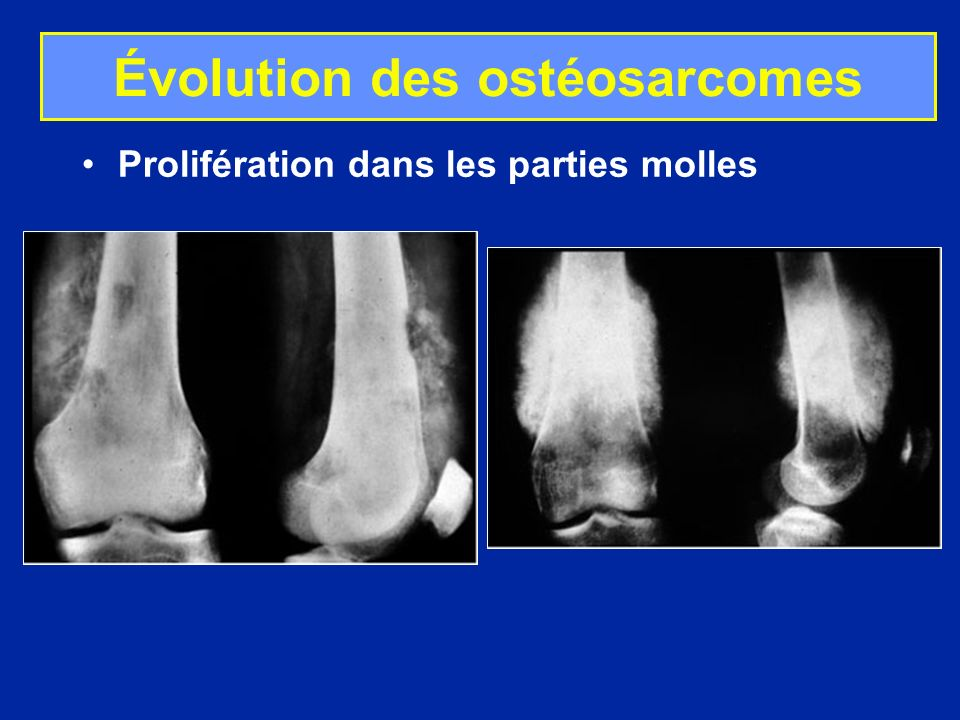 Évolution des ostéosarcomes Prolifération dans les parties molles