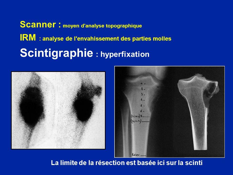 Scanner : moyen d'analyse topographique IRM : analyse de l'envahissement des parties molles Scintigraphie : hyperfixation La limite de la résection es