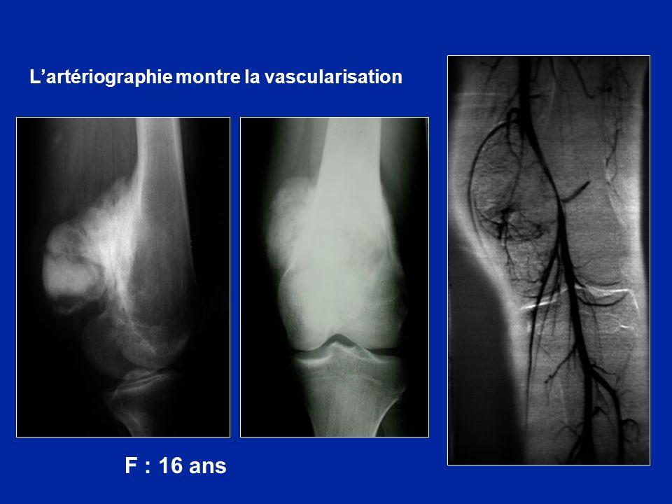 F : 16 ans Lartériographie montre la vascularisation