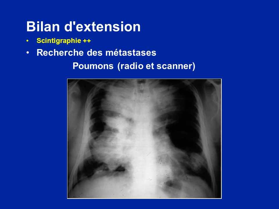Bilan d'extension Scintigraphie ++ Recherche des métastases Poumons (radio et scanner)