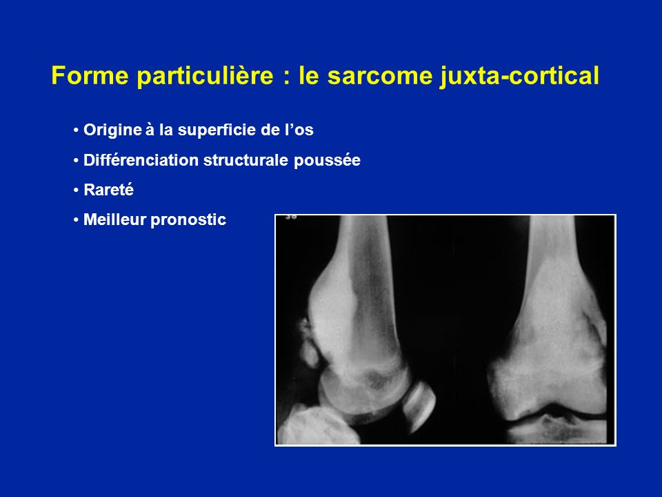Forme particulière : le sarcome juxta-cortical Origine à la superficie de los Différenciation structurale poussée Rareté Meilleur pronostic